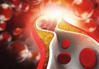 Какой уровень холестерина должен быть у мужчин в зависимости от возраста?