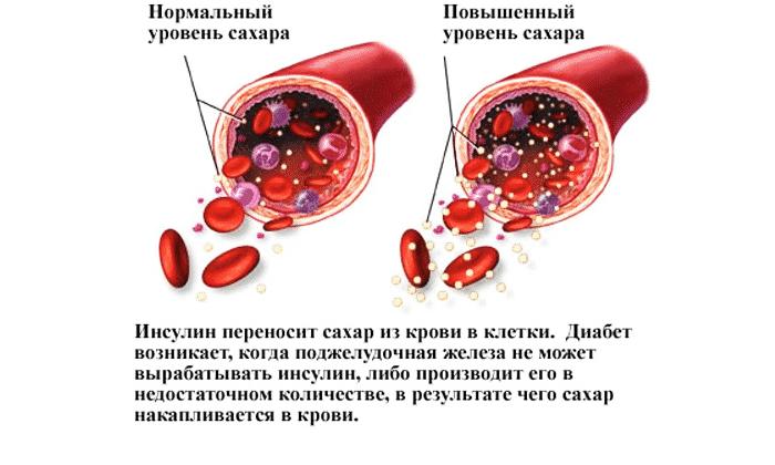 Октолипен снижает содержание сахара в крови