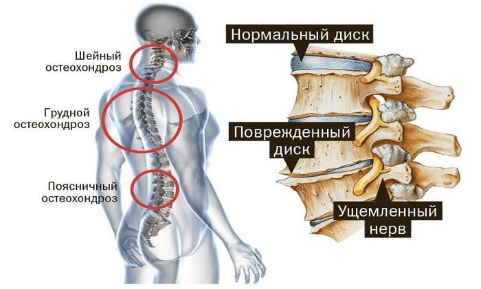 Препарат принимают при остеохондрозе любой локализации