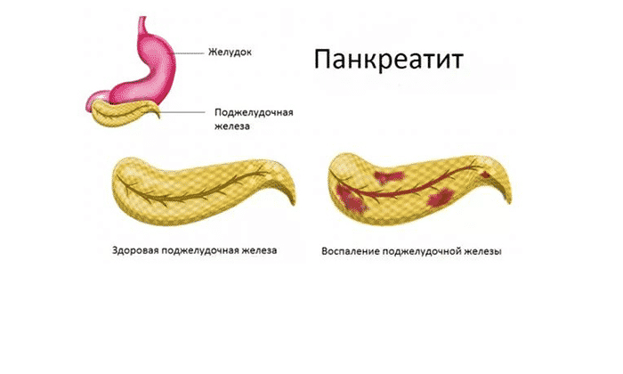 Октолипен назначают при панкреатите