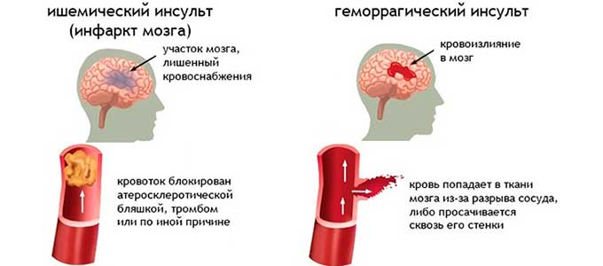 инфаркт мозга и инсульт
