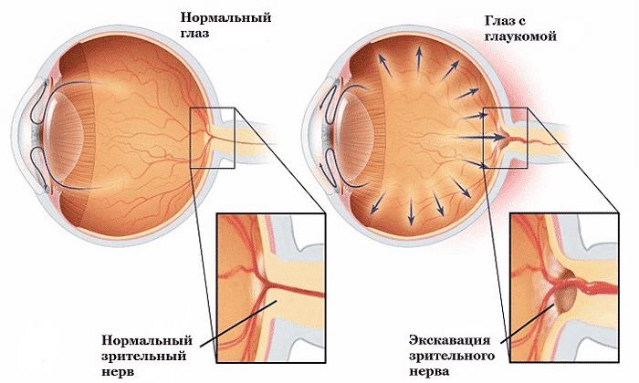 Медикамент применяют в терапии глаукомы
