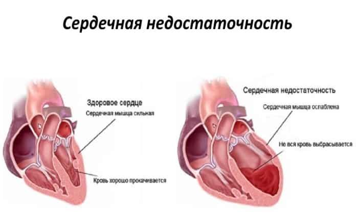 Препарат назначается с особой внимательностью в случае острой сердечной недостаточности