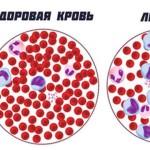 Лечение лейкоза народными средствами