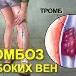 Народная медицина от тромбоза