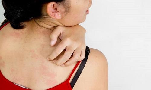 Если применять медикаментозное средство в форме геля, могут проявиться высыпания, зуд и дерматит
