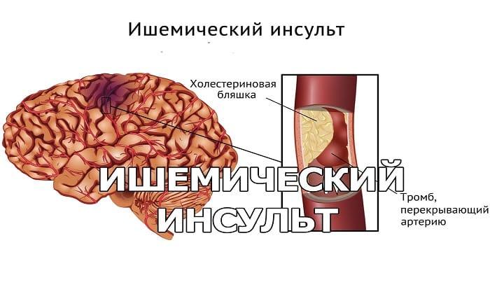 Острая стадия ишемического инсульта является показанием к применению препарата Актовегин