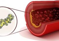 Симптомы, причины и лечение высокого холестерина