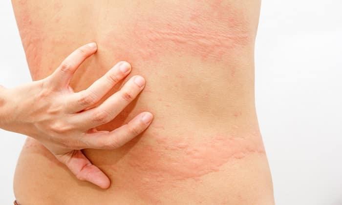 От приема препарата может быть побочное действие в виде крапивницы