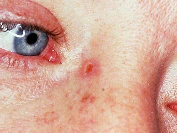 Разновидность рака носа