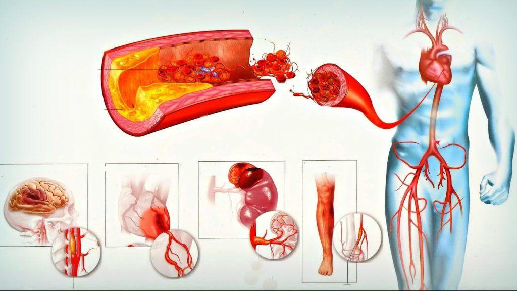 Атеросклеротические бляшки могут образоваться в любых сосудах