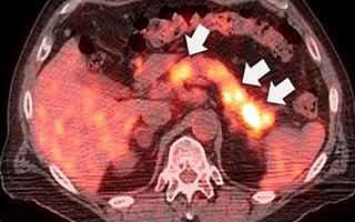 диффузные изменения поджелудочной
