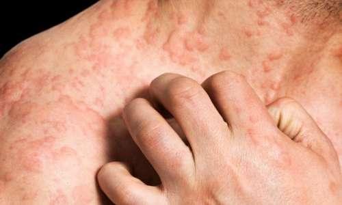 В ряде случаев на коже пациента образуются раны и волдыри как результат аллергических реакций