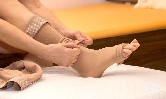 Пациентам, страдающим венозными заболеваниями, следует ходить в специальных чулках, которые предназначены для улучшения кровообращения