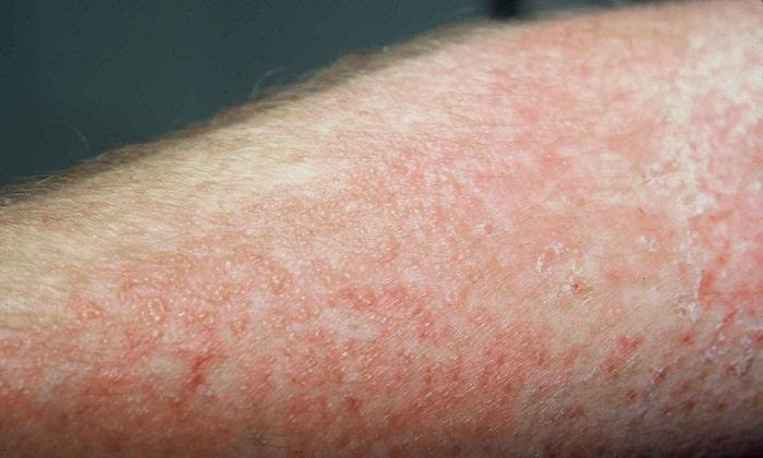 На фоне приема препарата может развиться аллергический дерматит