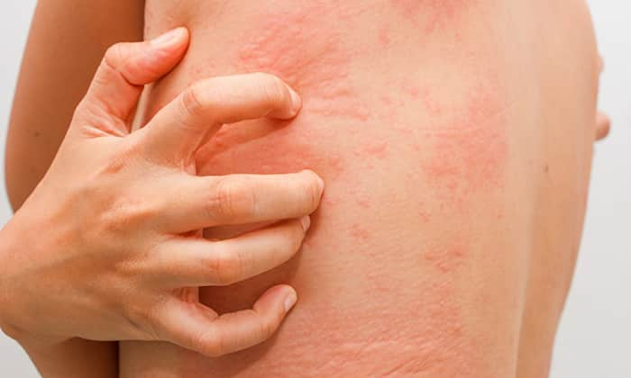 Может проявиться негативный побочный эффект в виде крапивницы, сыпи