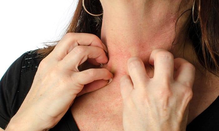 Глимекомб может вызвать появление зуда, сыпи