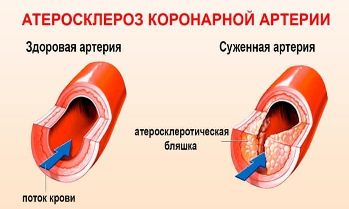 Лекарственное средство используется при коронарных атеросклерозов