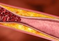 Какой должен быть холестерин у женщин от 30 до 70 и более лет?