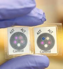 расшифровка анализа крови на АСТ и АЛТ