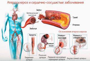 Атеросклероз и его осложнения