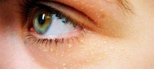 Холестерин вокруг глаз