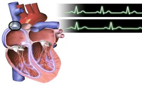 Выраженным признаком передозировки является замедление частоты сокращений сердца