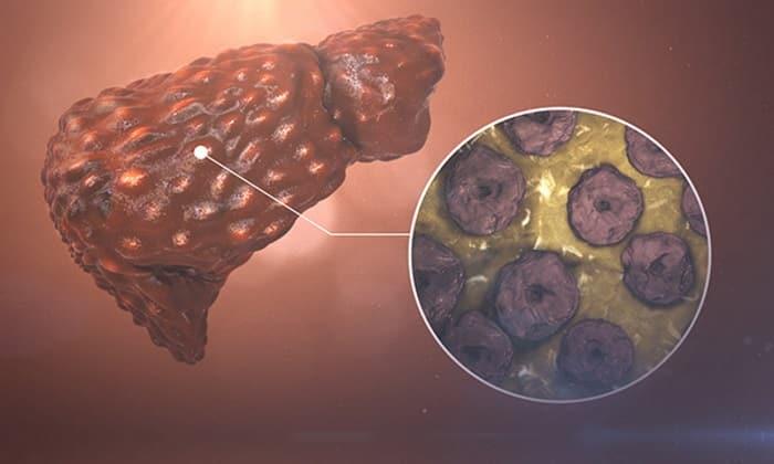 Препарат назначают при жировой дегенерации печени