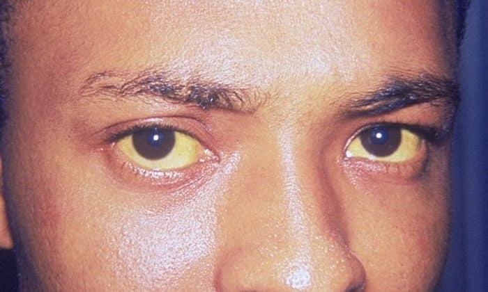 Прием лекарства запрещен при механической желтухе