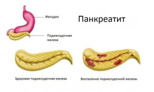 Есть информация о взаимосвязи приема препарата и развития панкреатита. При появлении характерных признаков лечение Януметом прекращают