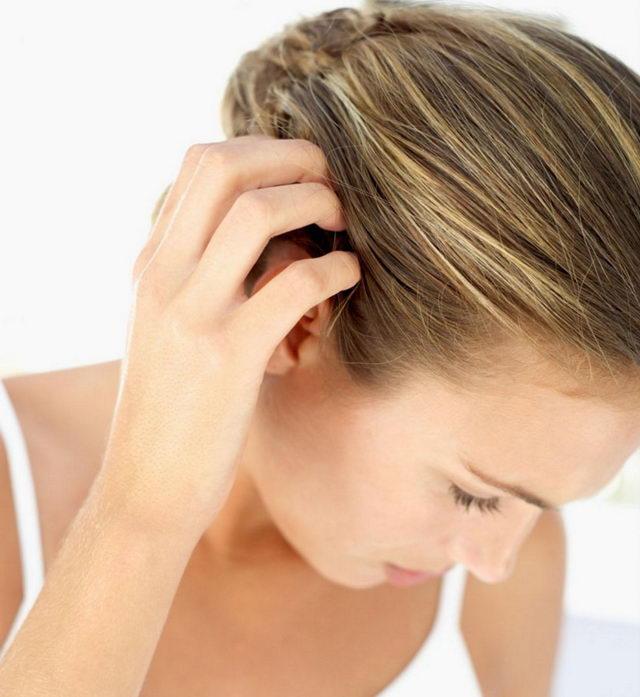 Кожа головы чешется и выпадают волосы: причины и лечение