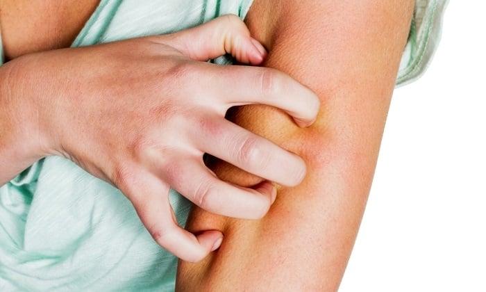 После приема препарата могут возникать сыпь, зуд и покраснения на коже