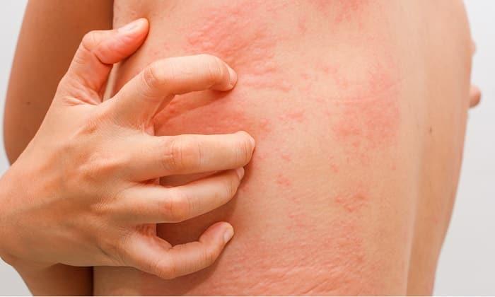 Аллергическая реакция на препарат проявляется кожной сыпью и зудом