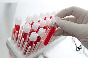 Анализ крови на холестерин