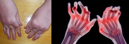 Ревматоидный артрит тесно связан с остеопорозом костей
