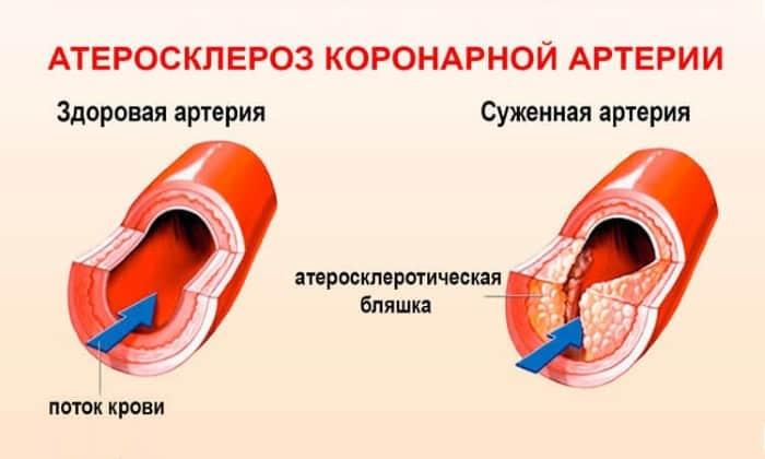 Препарат для лечения атеросклероза коронарных сосудов