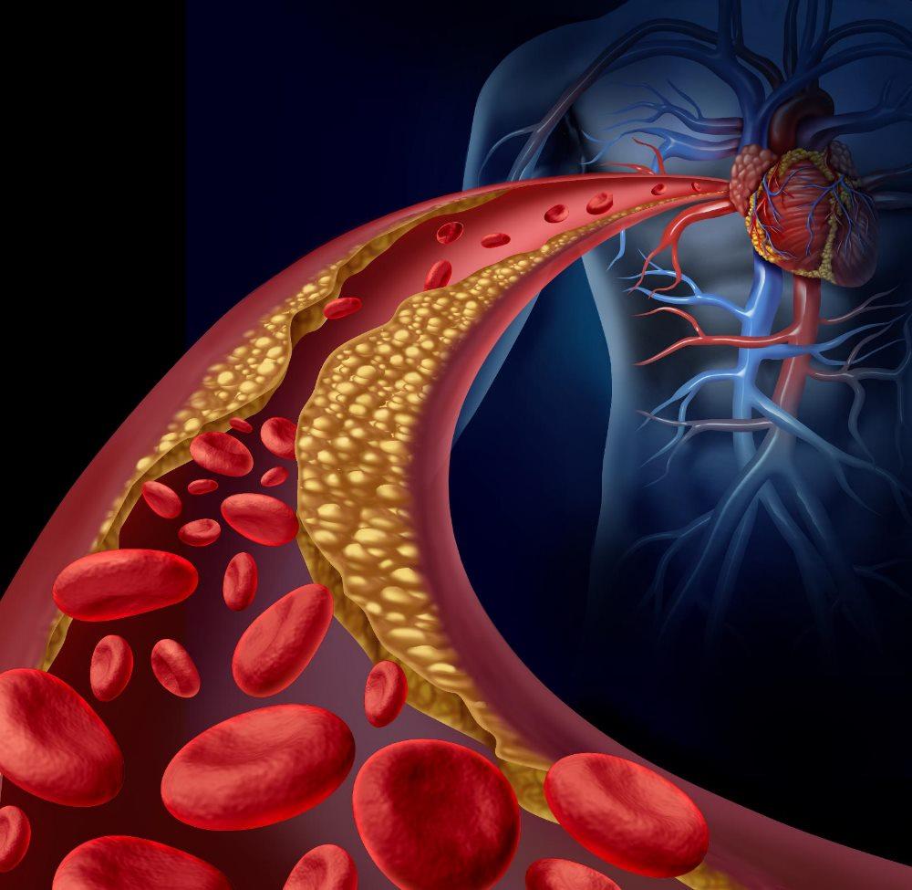 атеросклеротический кардиосклероз артерий