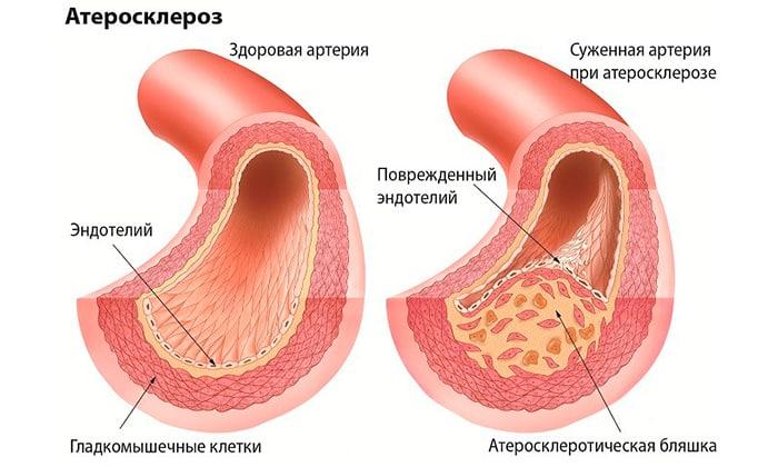 Препарат с боярышником предназначается при атеросклерозе