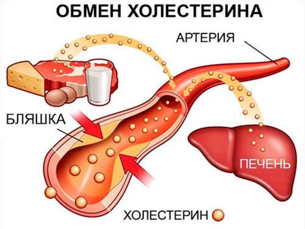 атеросклероз и холестирин