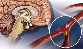 Атеросклероз сосудов головного мозга — лечение народными средствами