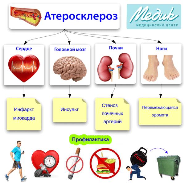 Атеросклеро