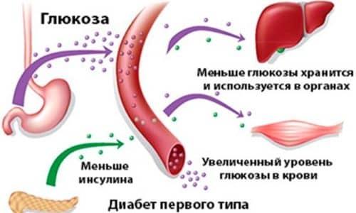 Медикаментозный препарат Багомет Плюс категорически запрещено использовать при сахарном диабете I типа