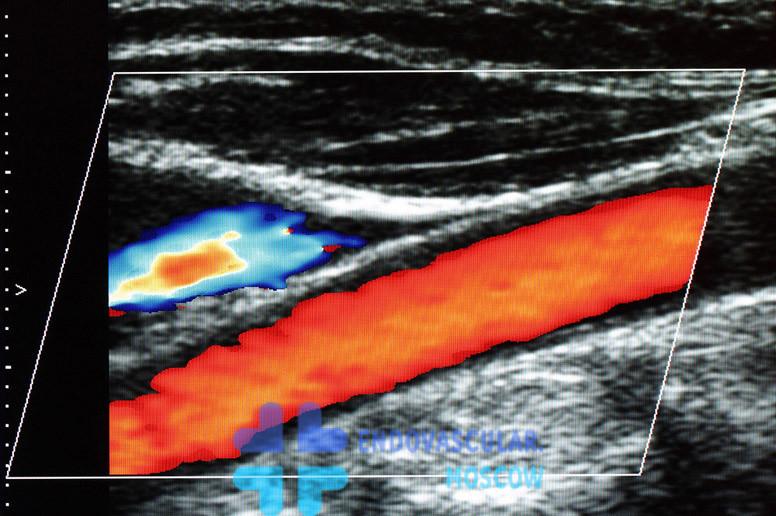 Допплерография УЗИ сонной артерии