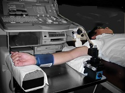 Как измеряется поток-опосредованная дилатация. Пережимается манжеткой рука. Накапливается оксид азота. Затем манжетку снимают. Накопленный оксид азота начинает сильно расширять сосуды. Силу этого расширения и называют поток-опосредованной дилатацией