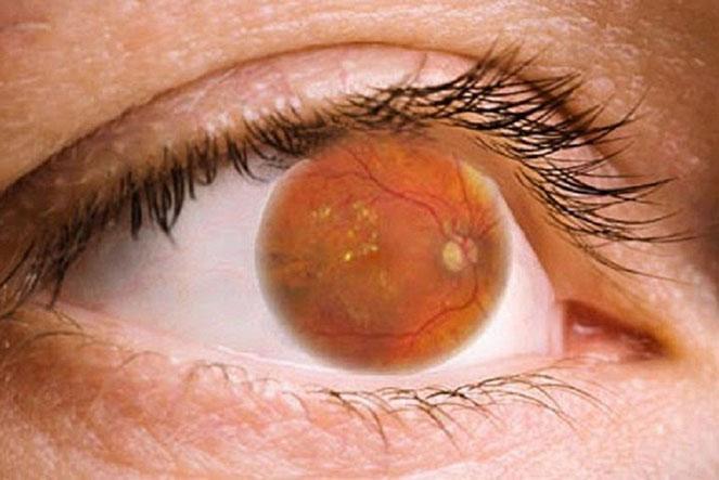 Особенности диабетической ретинопатии