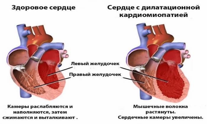 Препарат назначается с особой внимательностью в случае кардиомиопатии