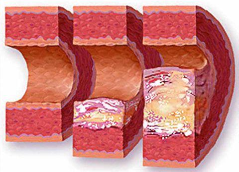 Фото: особенности развития атеросклероза аорты и кровеносных сосудов в организме