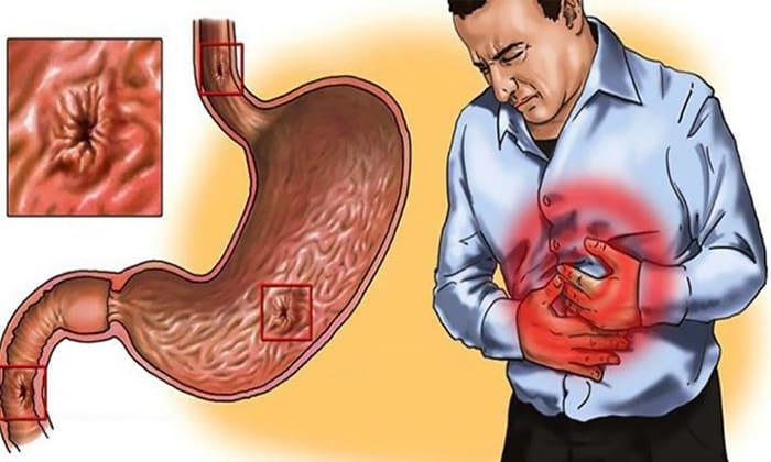 Гастриты (как острые, так и хронические) - причины появления могут быть различными (токсическая, вирусная, алкогольная), для лечения и профилактики назначается Эссенциале