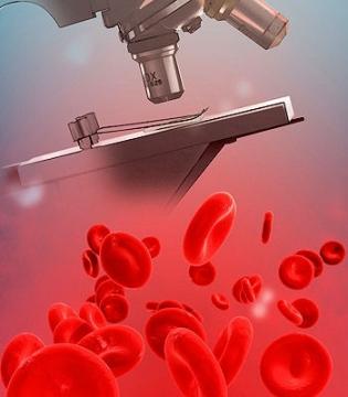 повышенный гематокрит в крови