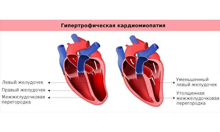 С осторожностью препарат назначается пациентам при кардиомиопатии гипертрофического типа